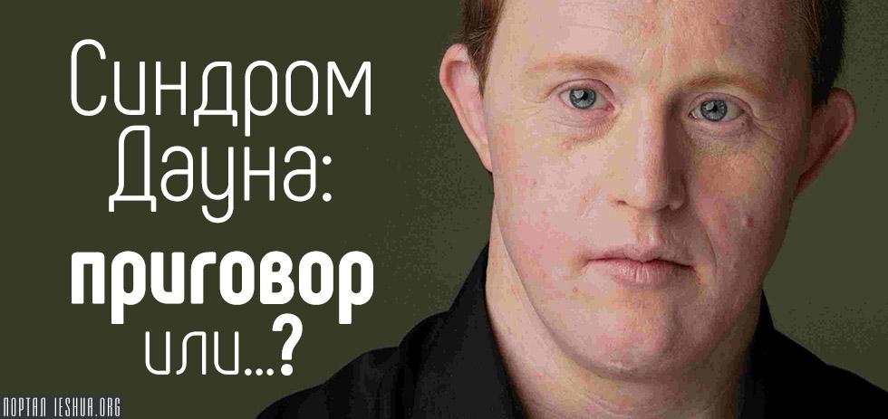 Синдром Дауна: приговор или...?